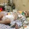 Допомога дитині, яка не може дихати